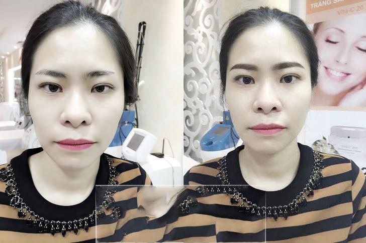 lông mày trước và sau khi bong