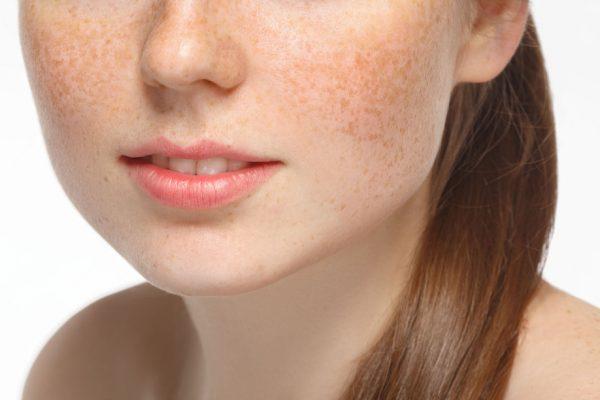 Những khái niệm cơ bản về nám da